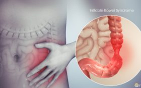 Stomach Trivia:I often want to go to the toilet, I have Irritable Bowel Syndrome.