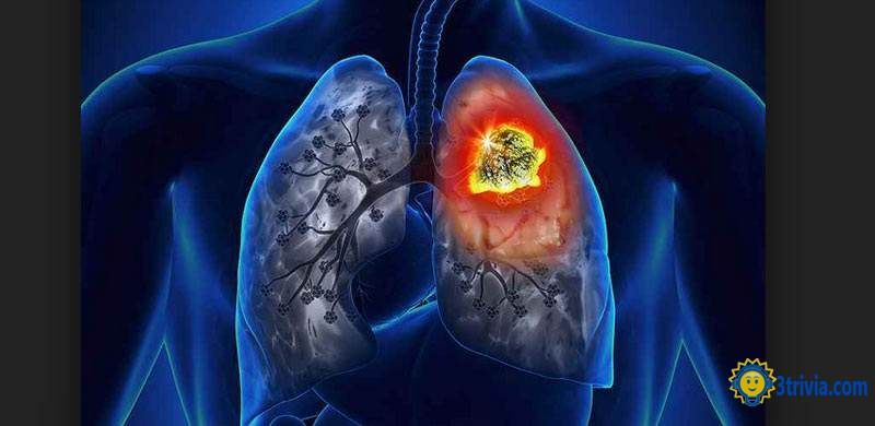 Disease trivia: Humans are afraid of disease Lung Cancer